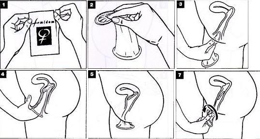 cara memakai kondom wanita yang benar